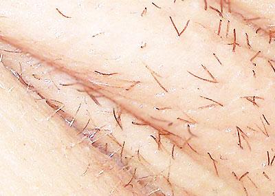 【脇の下接写エロ画像】女子の汗ばんだ脇の下をマクロ撮影!!どアップで脇毛の処理跡も見られる脇の下接写のエロ画像集!ww【80枚】