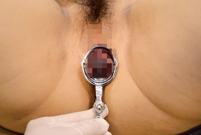 【クスコ調教エロ画像】おまんこくぱぁしてクスコを挿入したら膣内が丸見え!医療器具を変態プレイに使っちゃうクスコ調教のエロ画像集!ww【80枚】 14