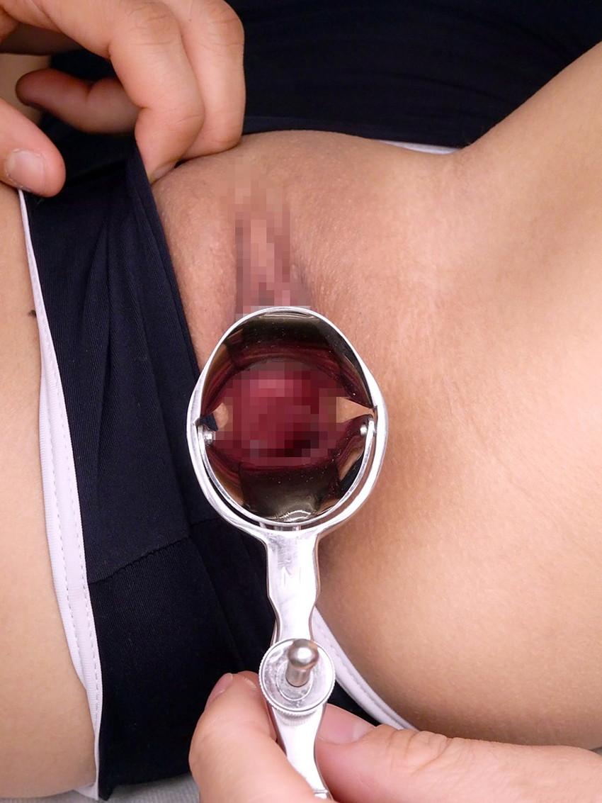 【クスコ調教エロ画像】おまんこくぱぁしてクスコを挿入したら膣内が丸見え!医療器具を変態プレイに使っちゃうクスコ調教のエロ画像集!ww【80枚】 74
